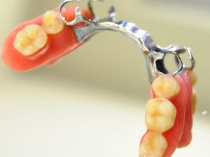 Empezando a utilizar una prótesis dental