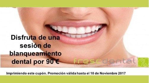 Blanqueamiento Dental a un precio muy especial